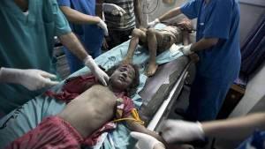 Ninos-hospital-al-Shifa-Gaza-AFP_CLAIMA20140709_0113_27